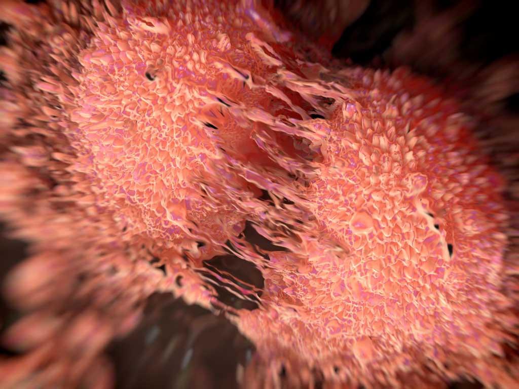 Immune Landscapes