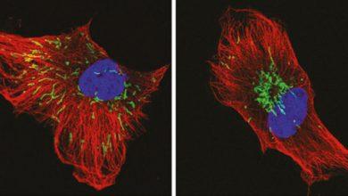 Photo of Mitochondria Movement Kills Cancer Cells!