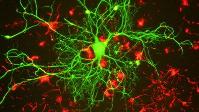 Photo of Neurons are genetically programmed to have long lives